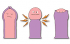 包皮手术对男性有哪些好处?