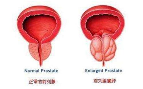 前列腺囊肿对人有什么影响